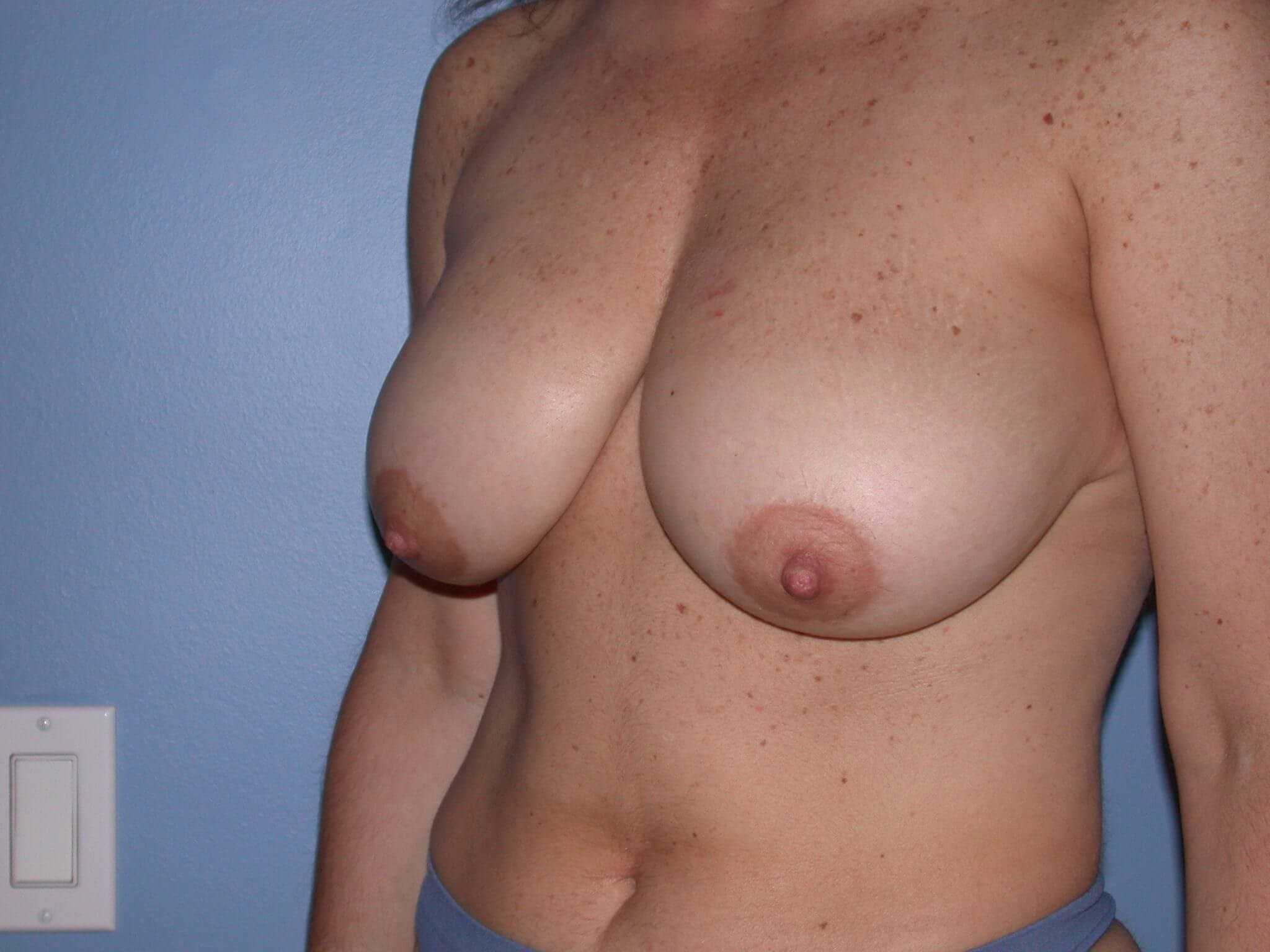 Breast Reduction Side View Before