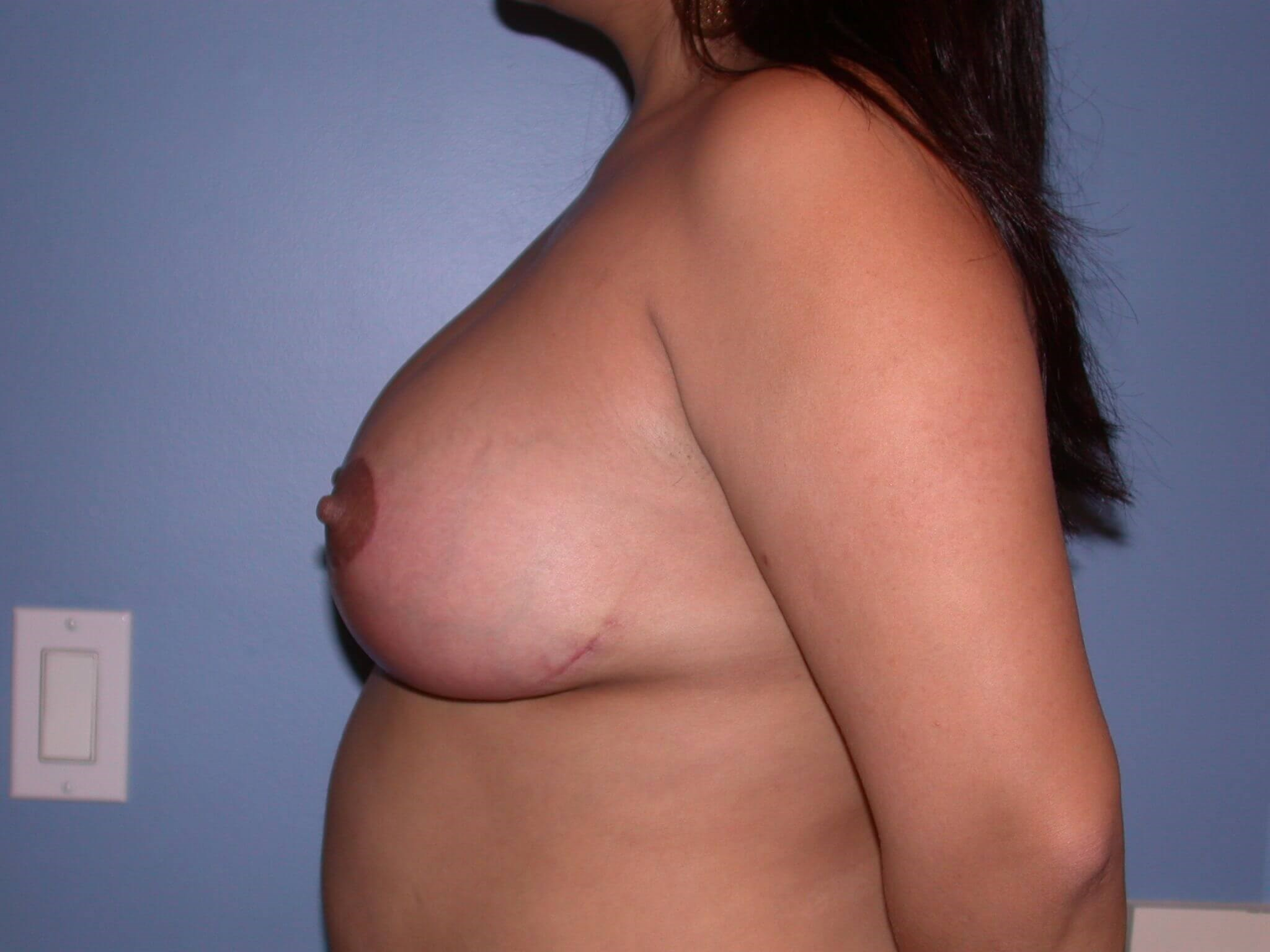 Breast Reduction Side left After