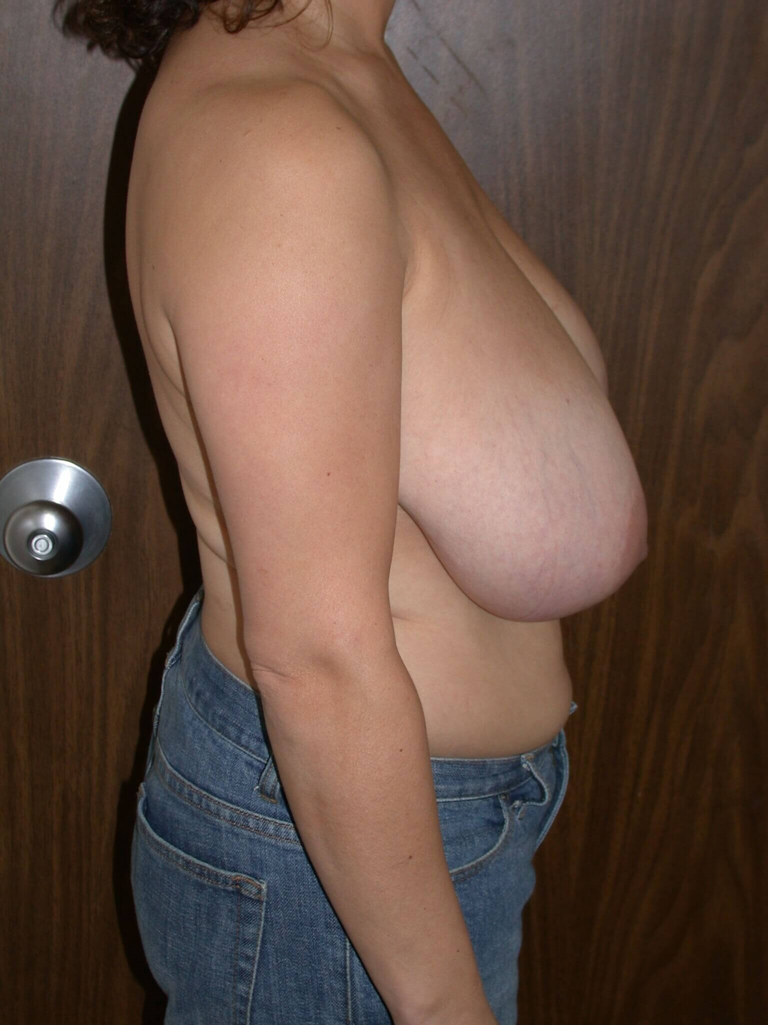 Breast Reduction Side Right Before