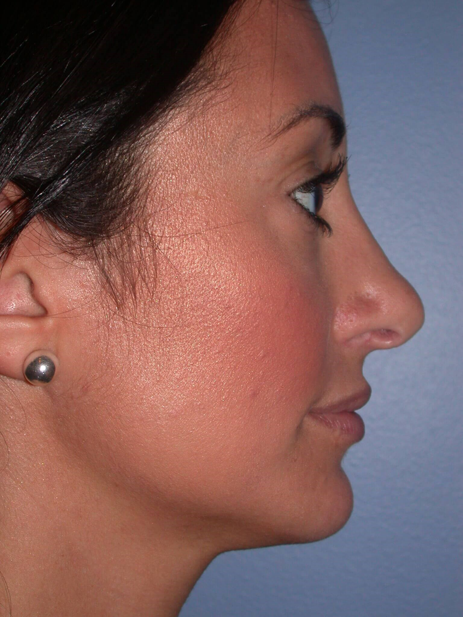 Facial Filler Right After