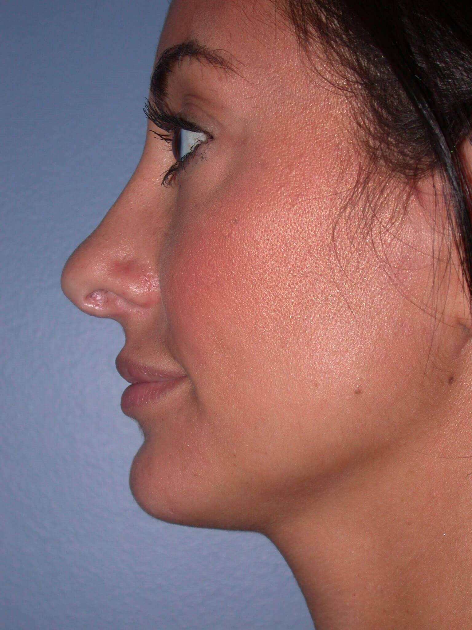 Facial Filler Left After