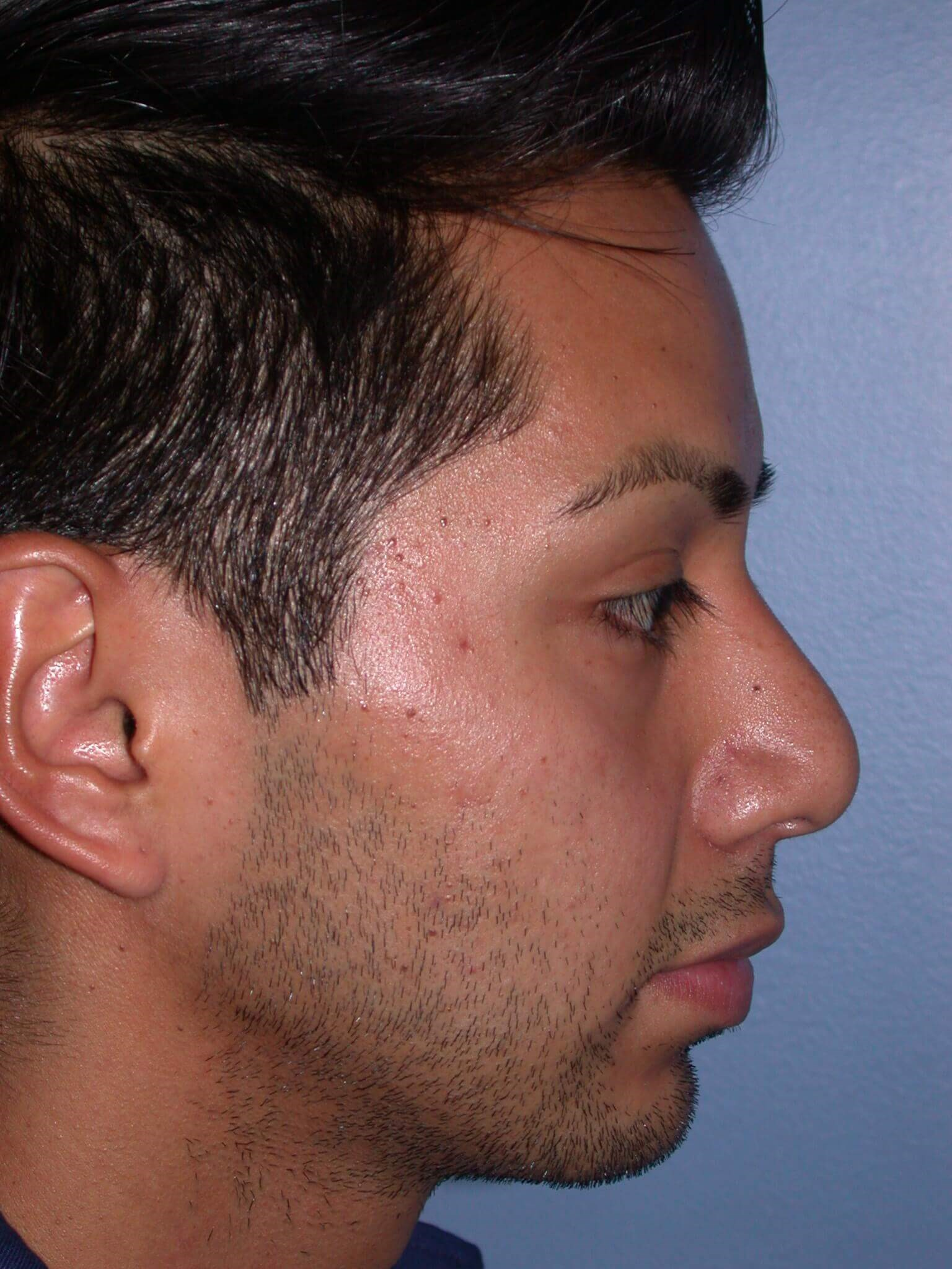 Facial Filler Right Before
