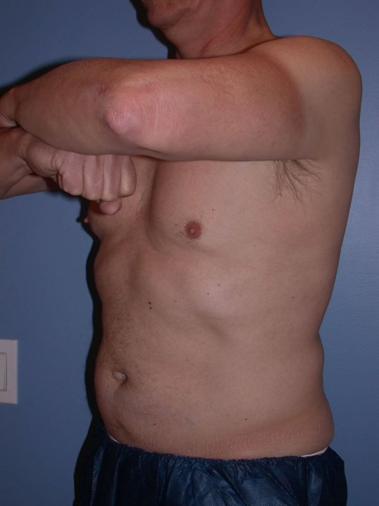 CoolSculpting Side View After