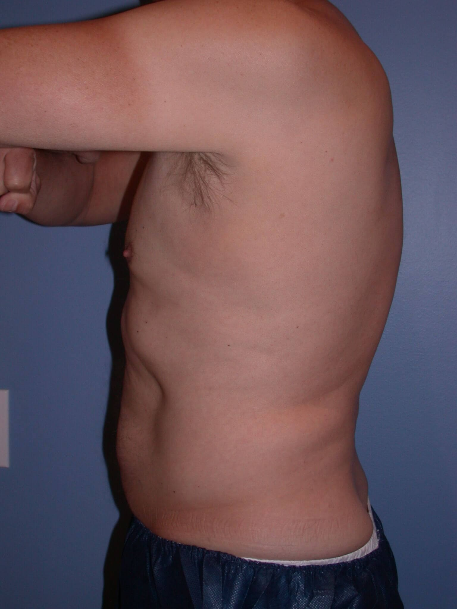 CoolSculpting Left After
