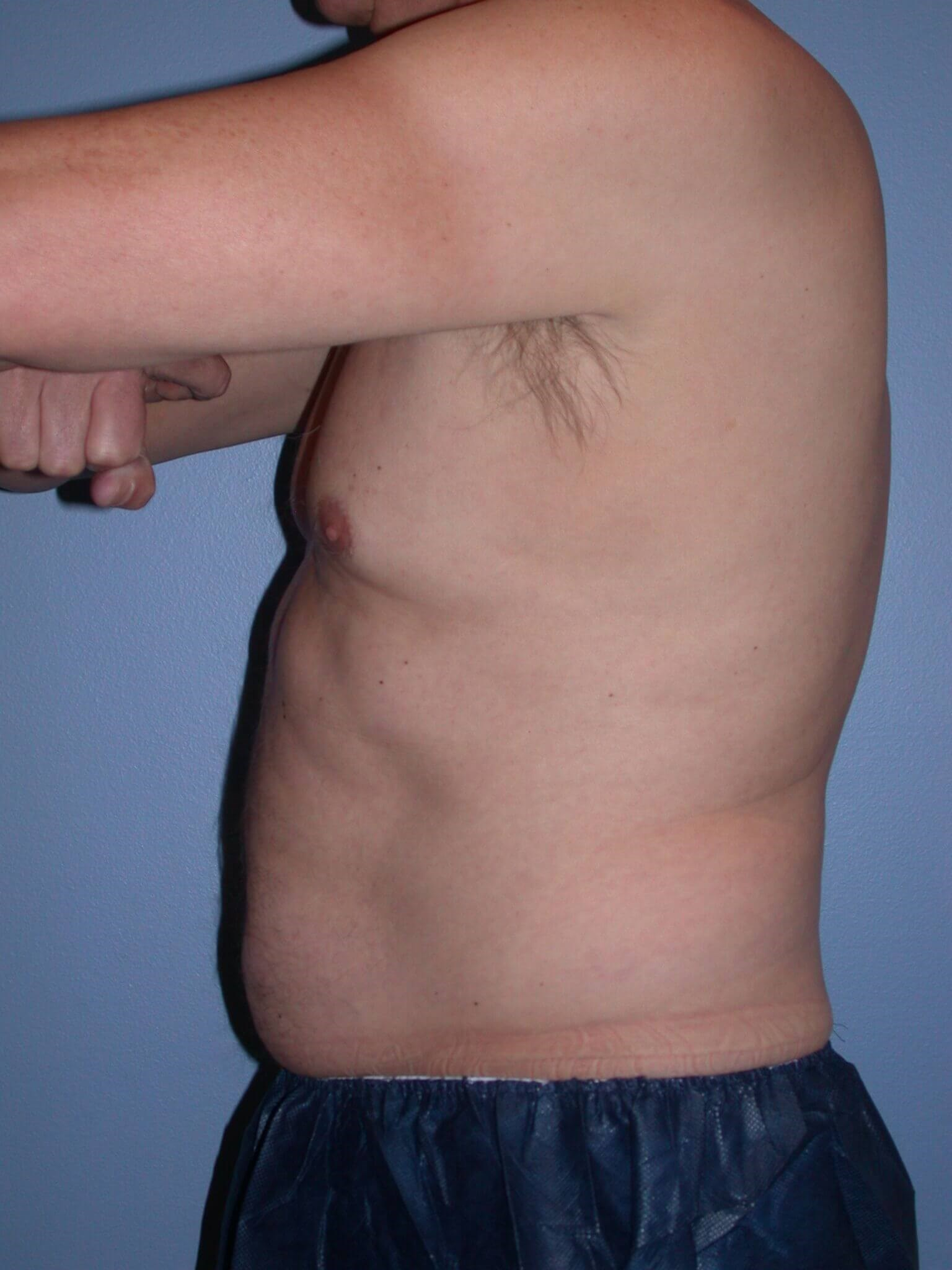 CoolSculpting Left Before