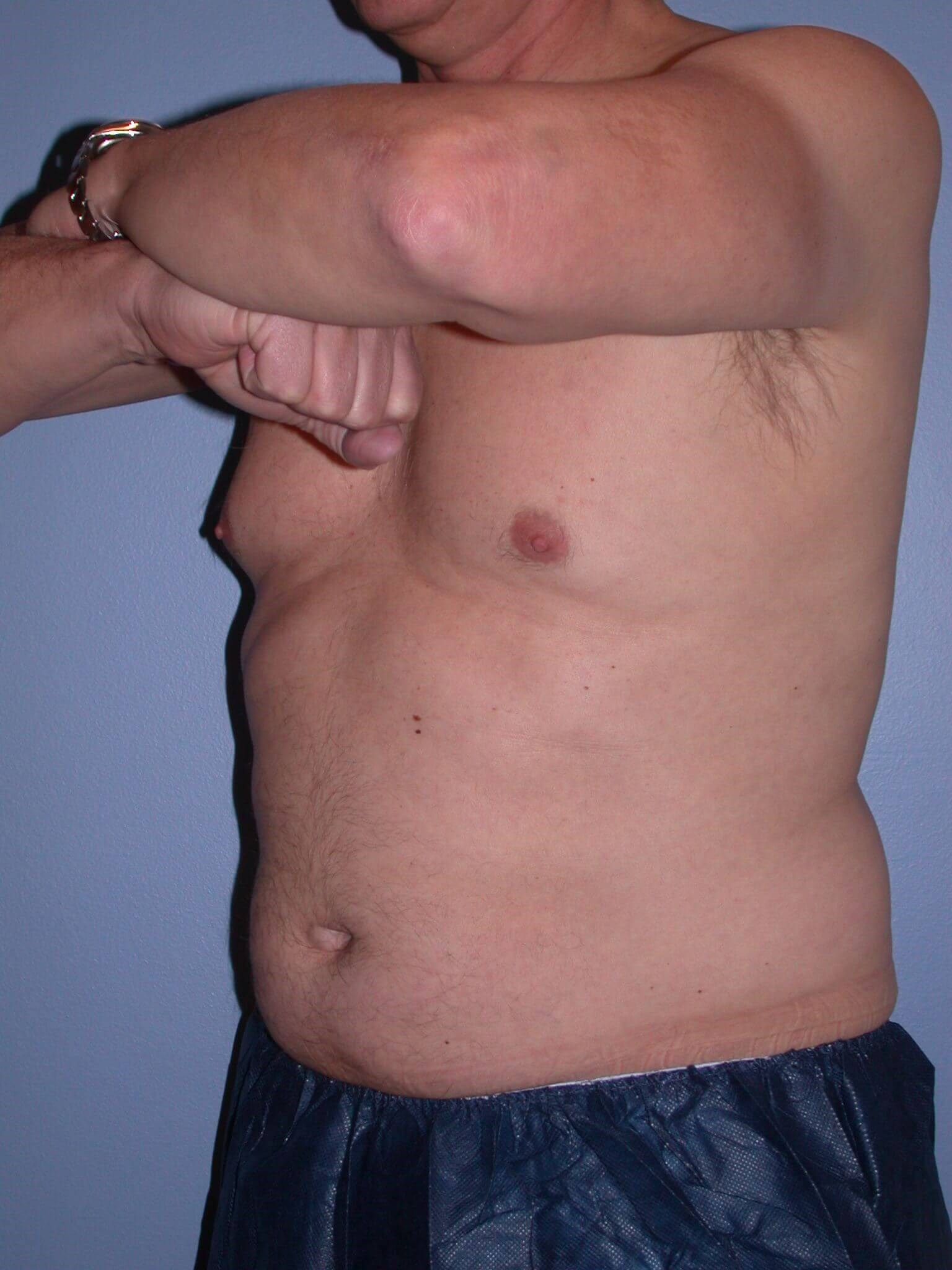 CoolSculpting Side View Before