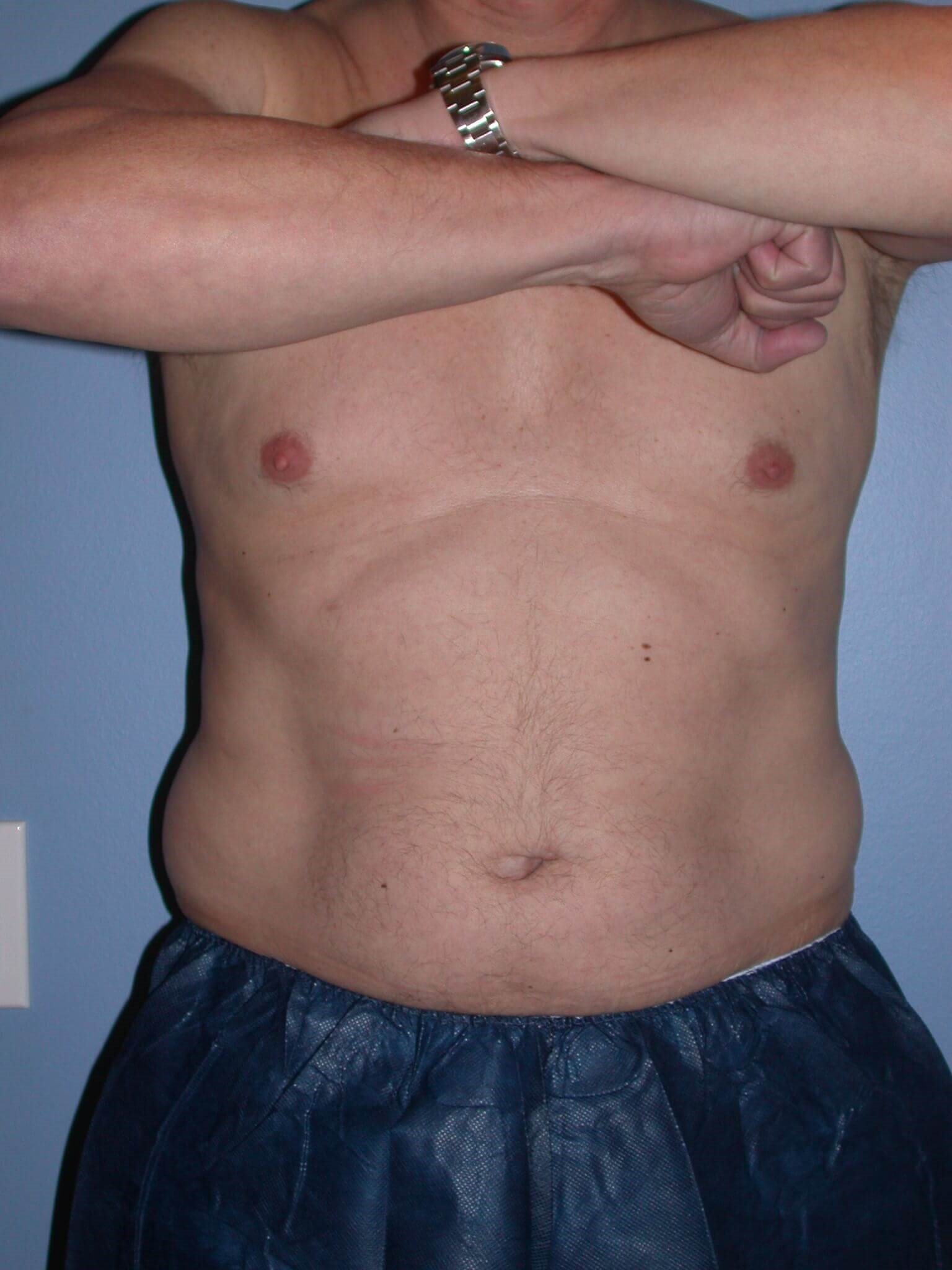 CoolSculpting Front View Before