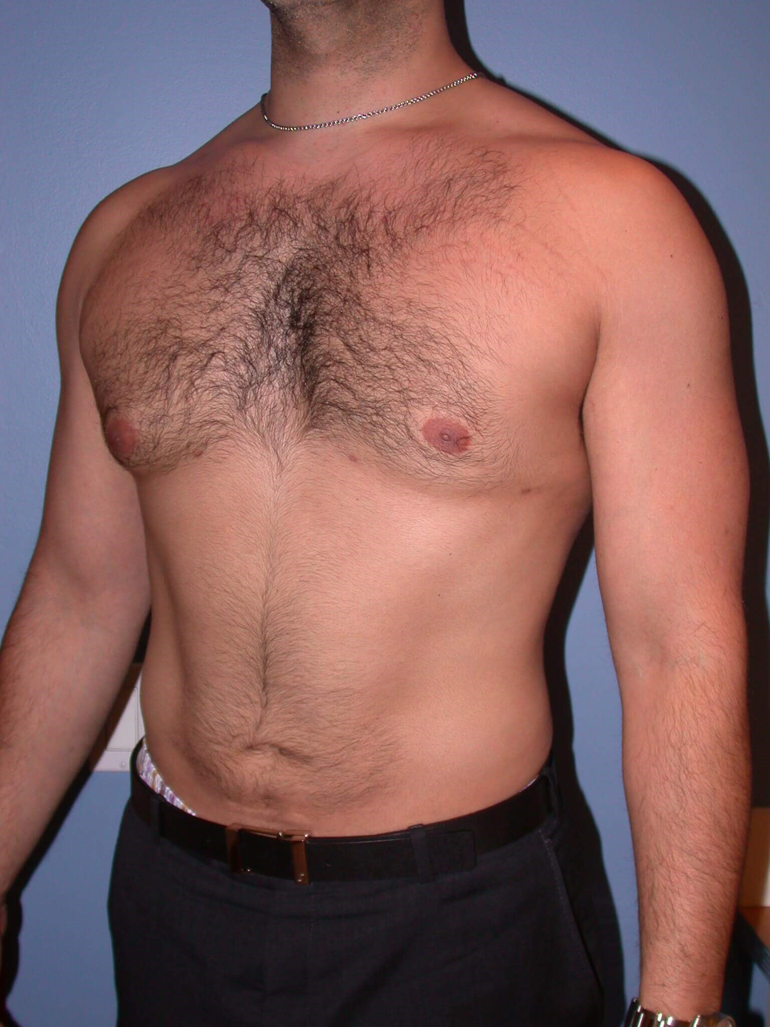 Gynecomastia/Lipo Side View After