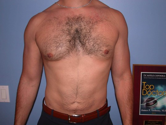 Gynecomastia/Lipo Front View After