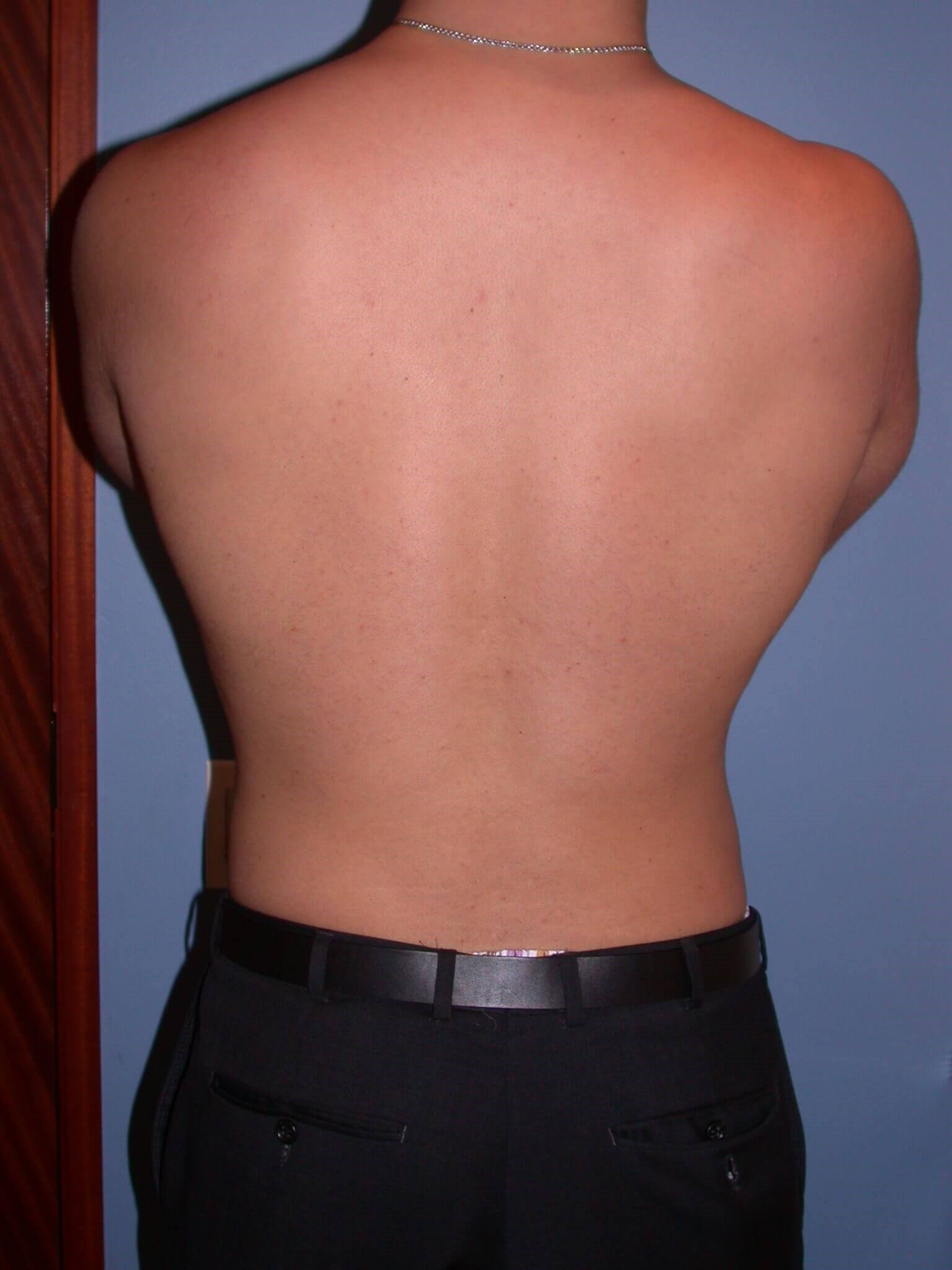 Gynecomastia/Lipo Back View After