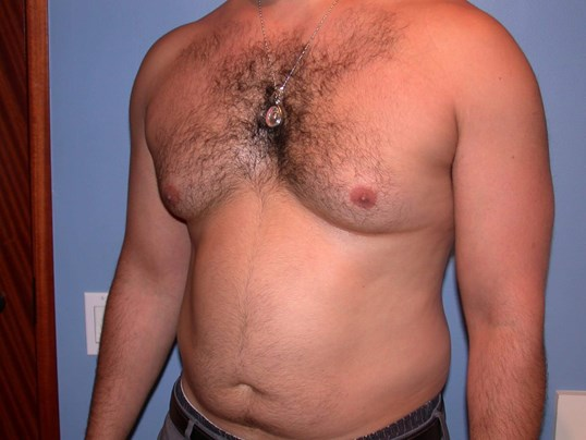 Gynecomastia/Lipo Side View Before
