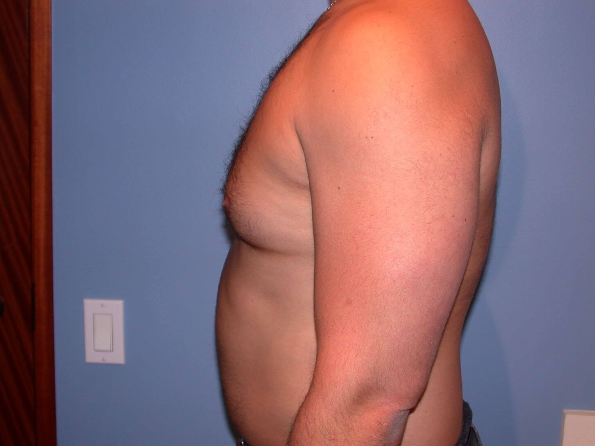 Gynecomastia/Lipo Side Left Before