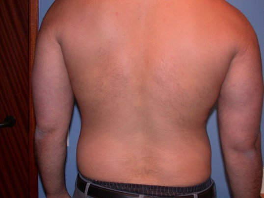 Gynecomastia/Lipo Back View Before