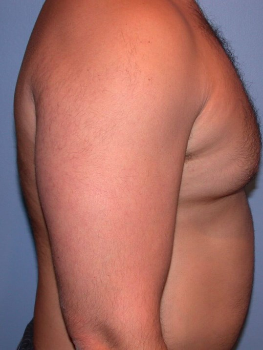 Gynecomastia/Lipo Side Right Before