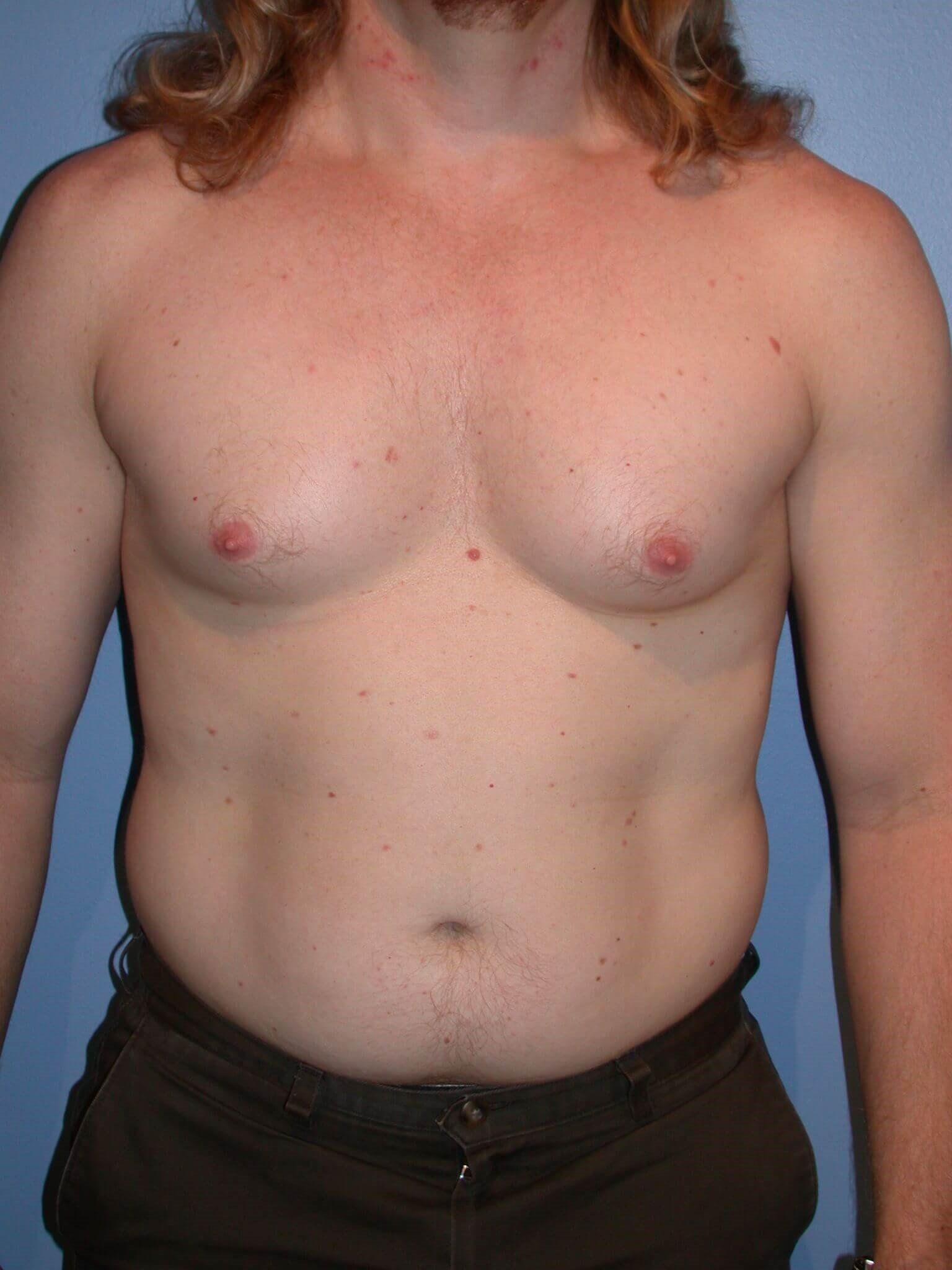 Gynecomastia/Lipo Front View Before
