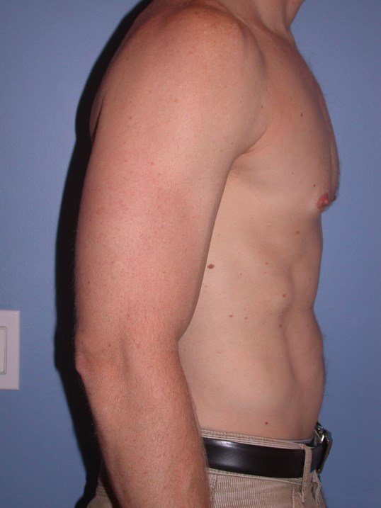 Gynecomastia/Lipo Side Right After