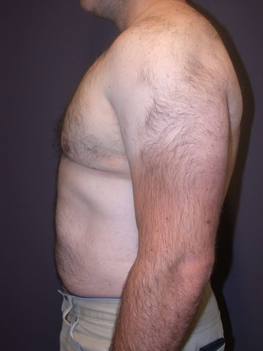Gynecomastia/Lipo Side Left After