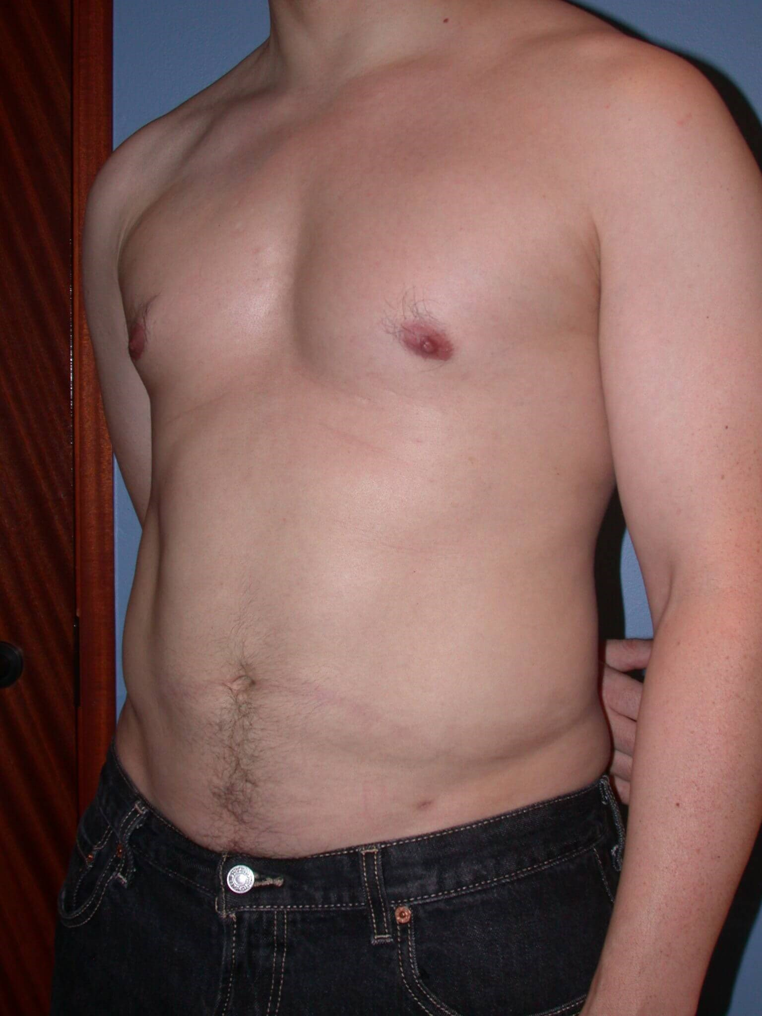 Liposuction Side View After