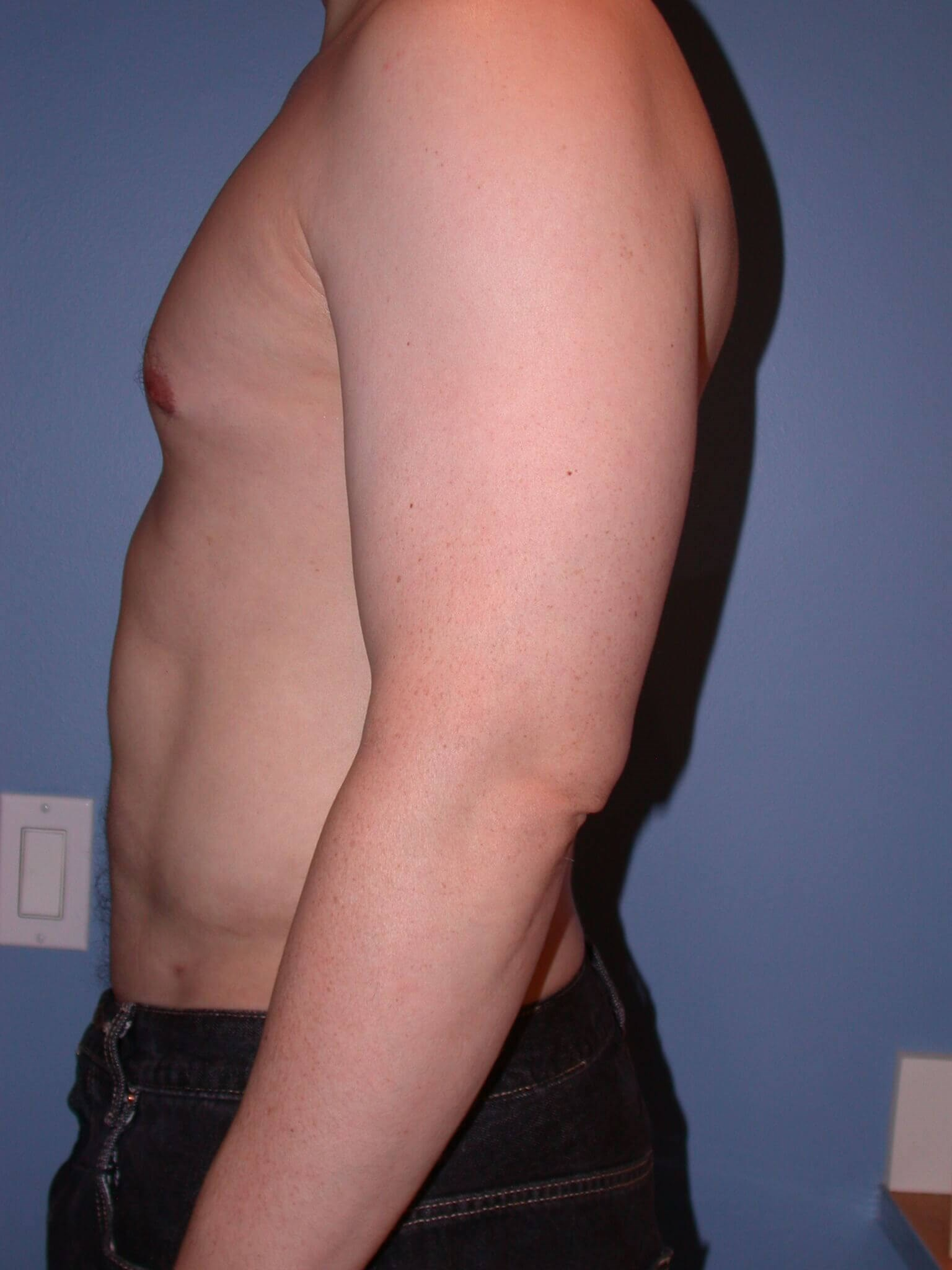 Liposuction Side Left After