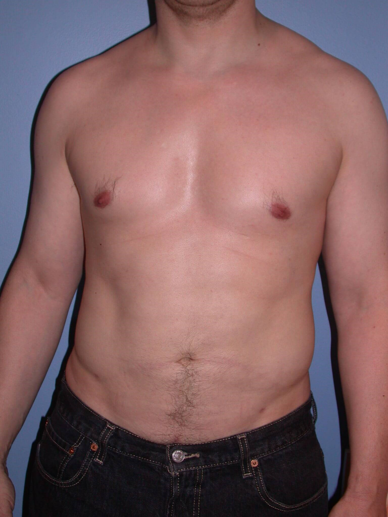 Liposuction Front View After