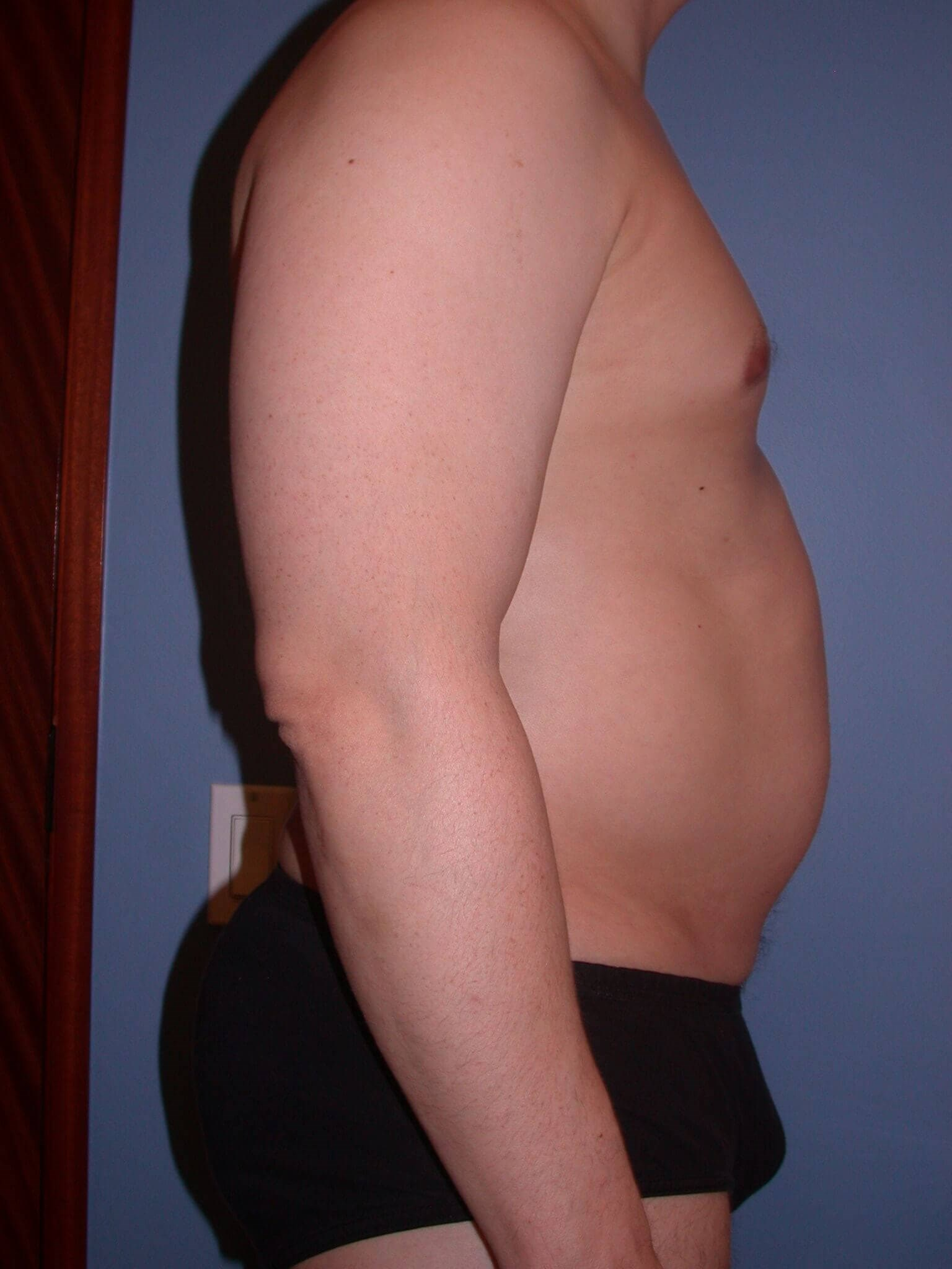 Liposuction Side Right Before