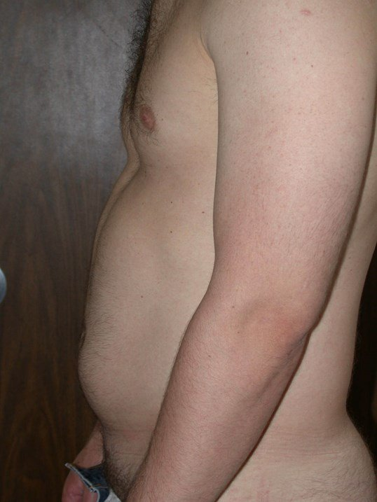 Liposuction Side Left Before