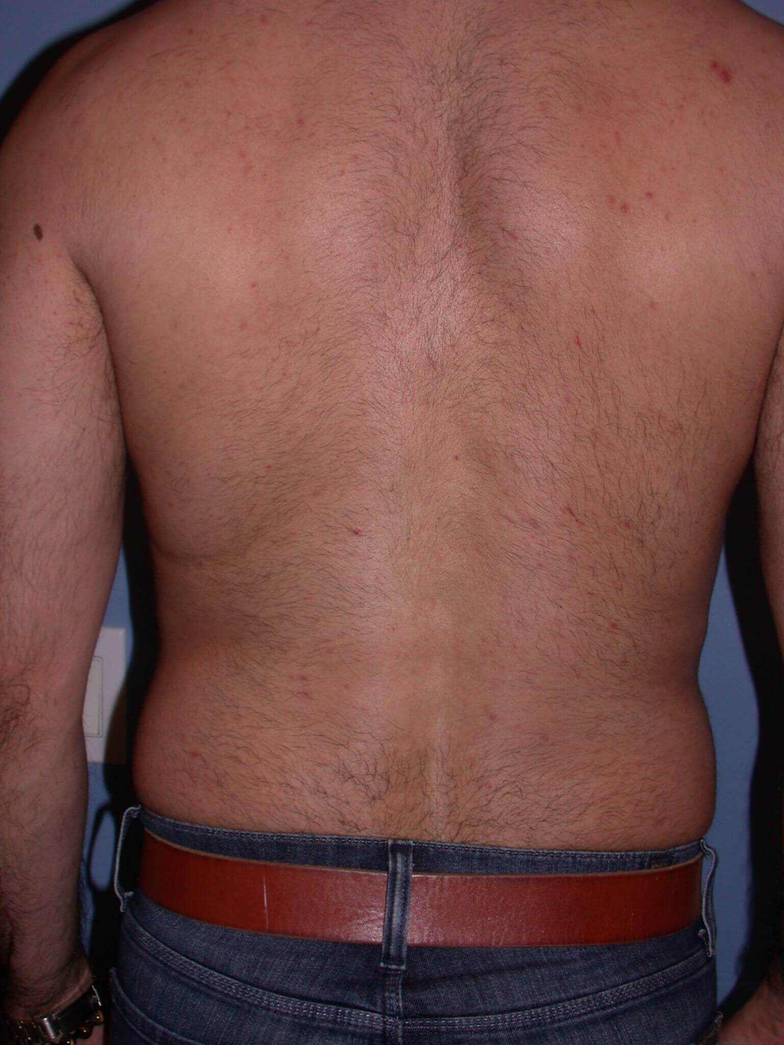 Liposuction Back View Before
