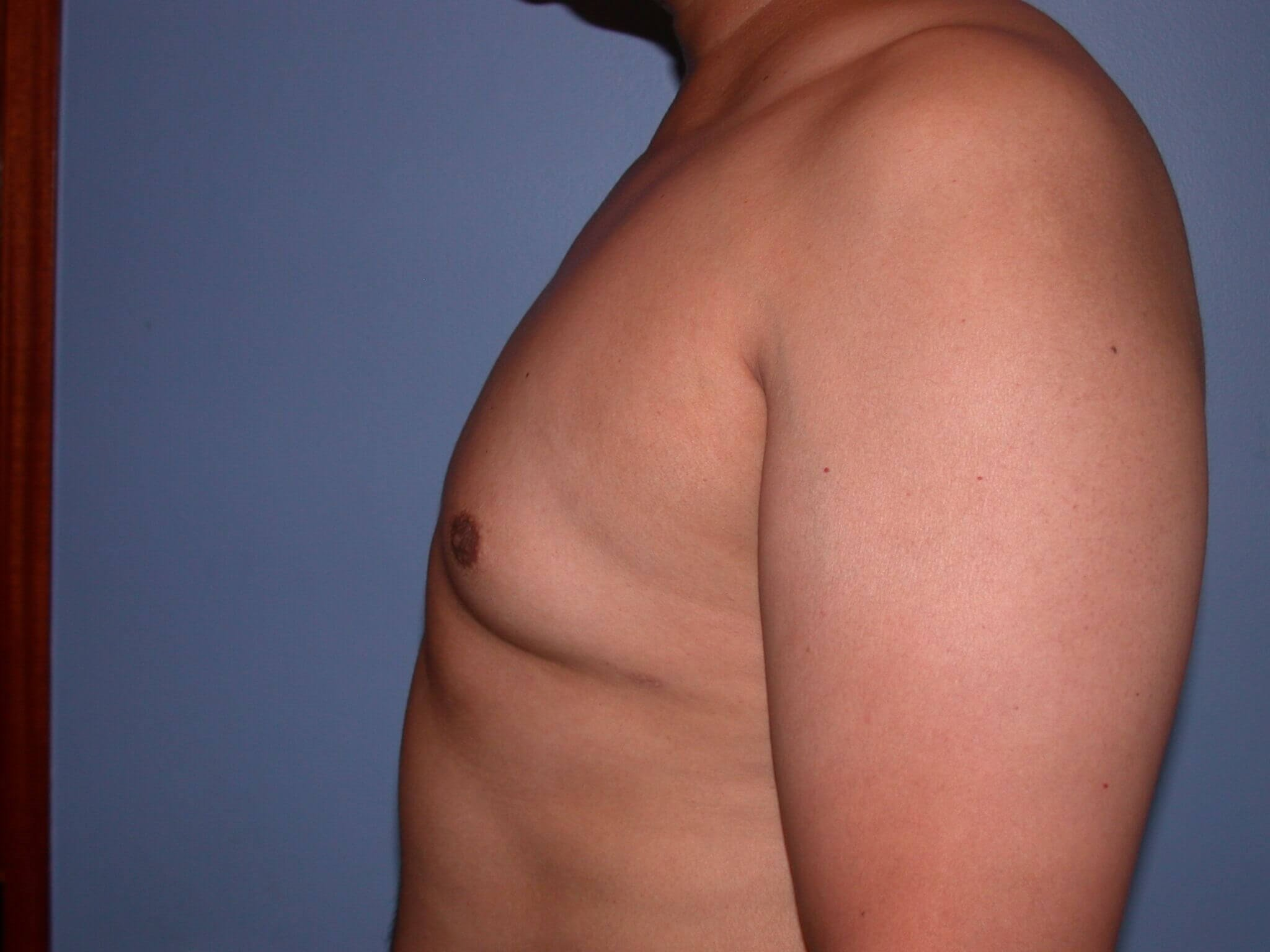 Gynecomastia Side Left After