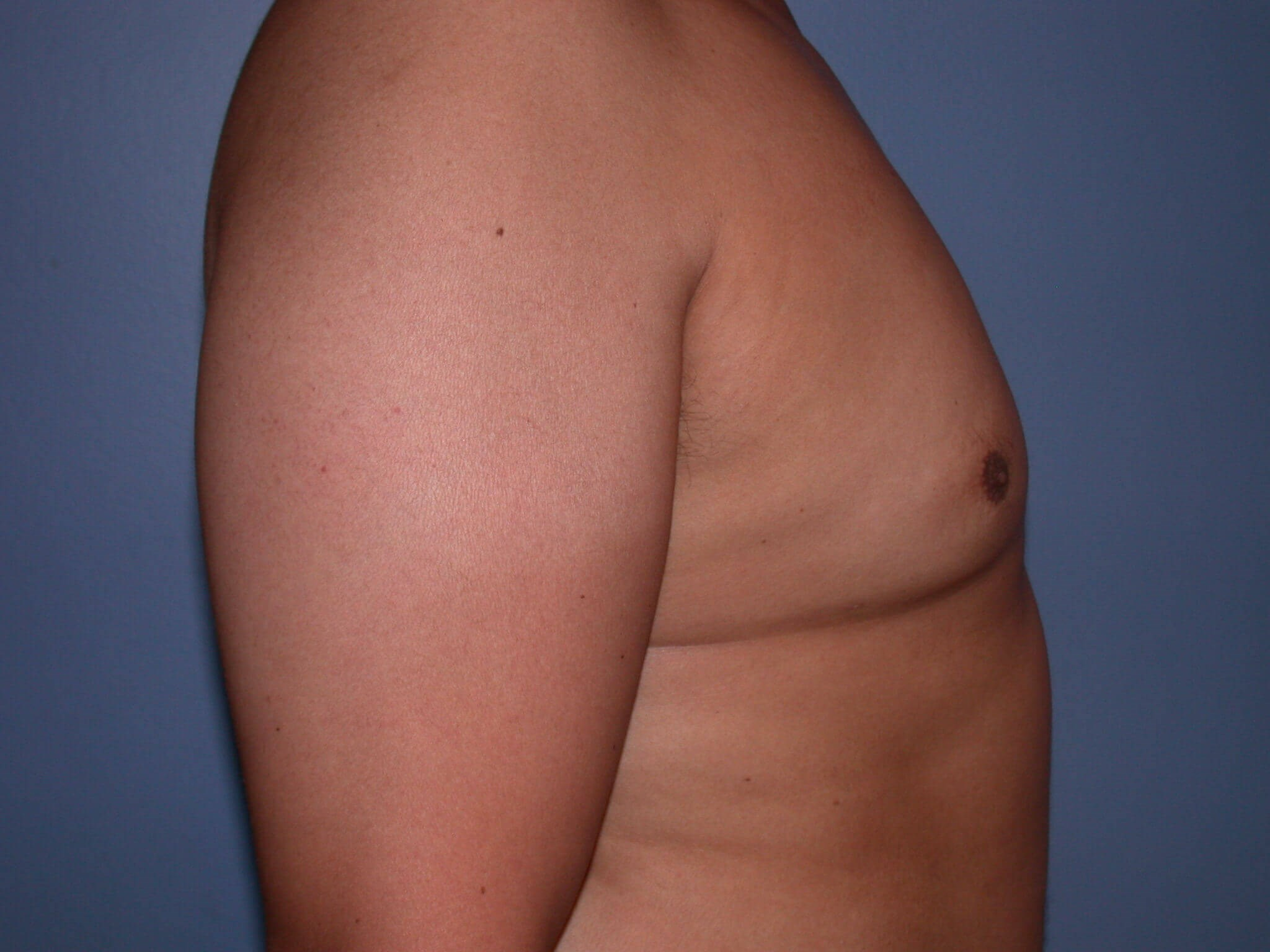 Gynecomastia Side Right After
