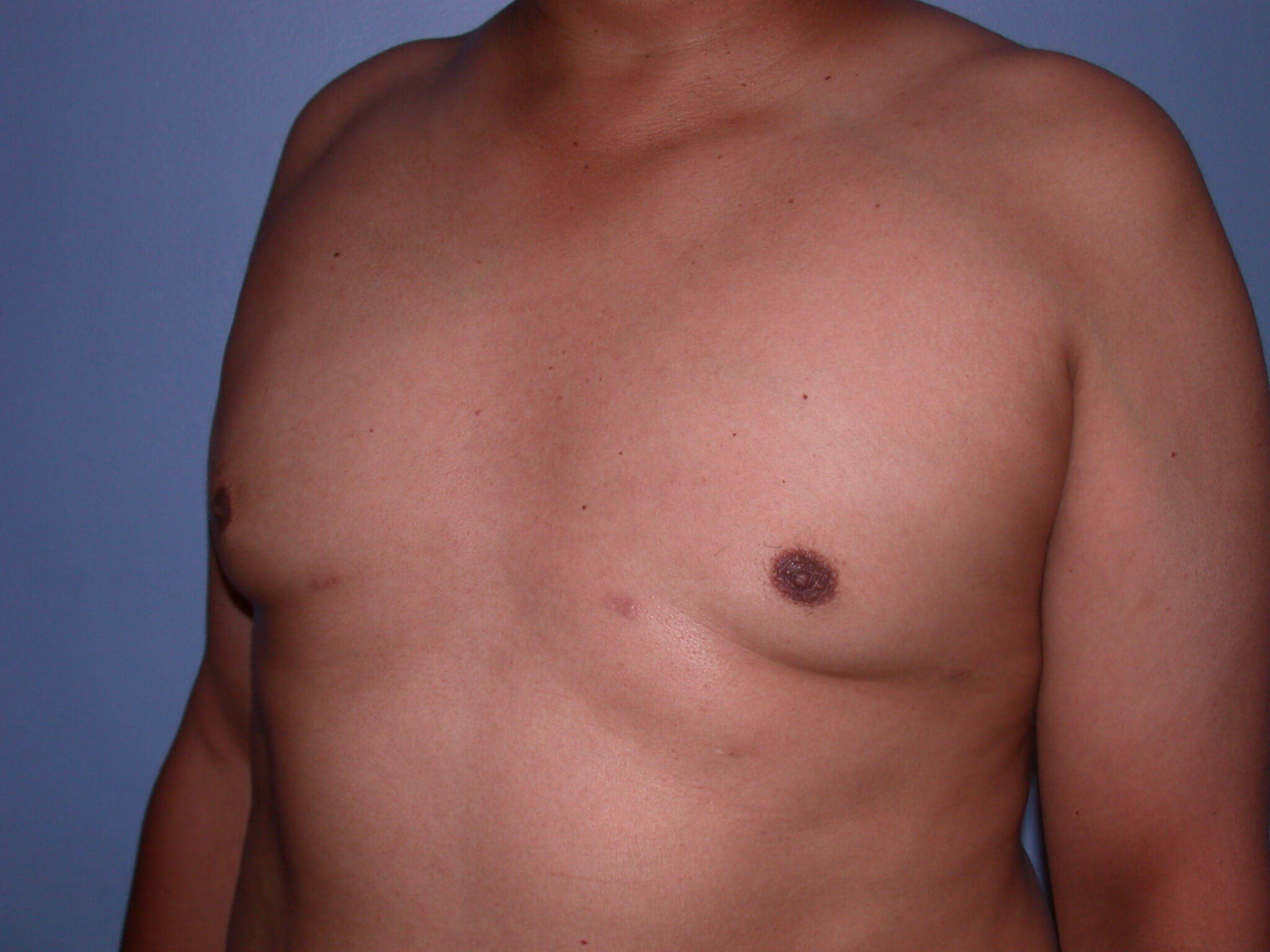 Gynecomastia Side View After