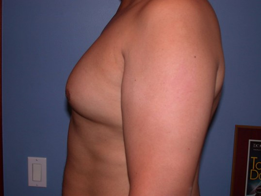 Gynecomastia Side Left Before
