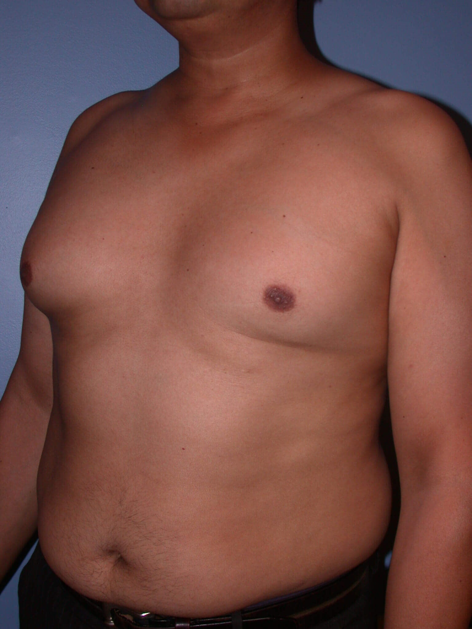 Gynecomastia Side View Before