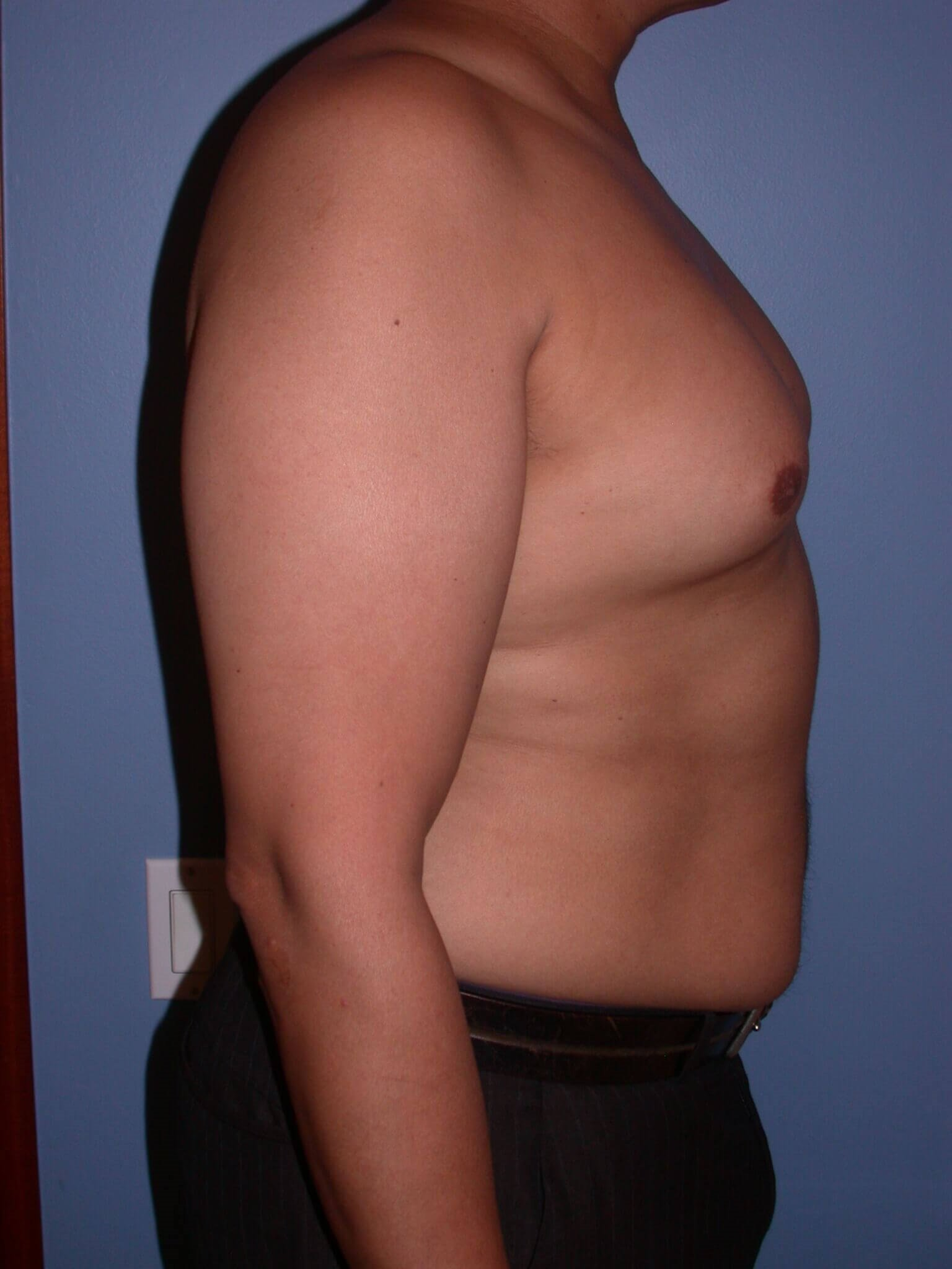 Gynecomastia Side Right Before