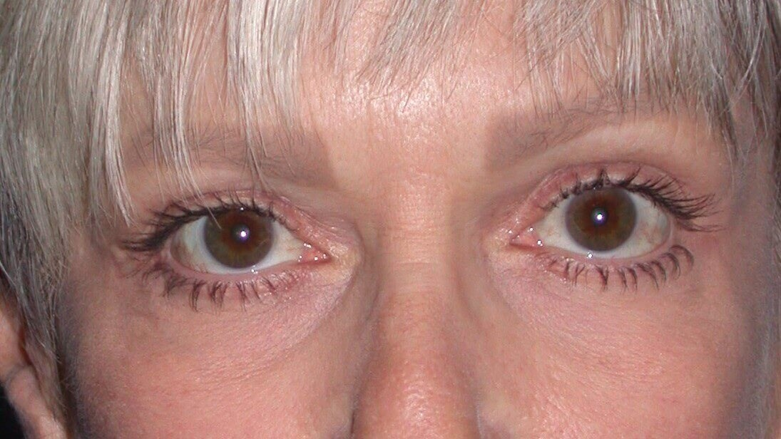 Blepharoplasty Front After