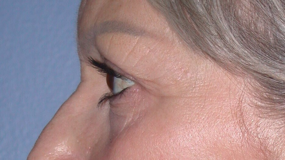 Blepharoplasty Side Left Before