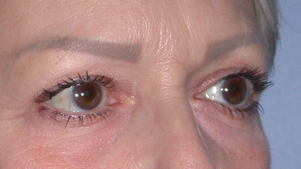 Blepharoplasty Side View Before