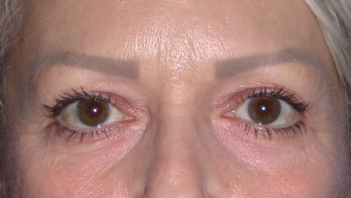 Blepharoplasty Front Before