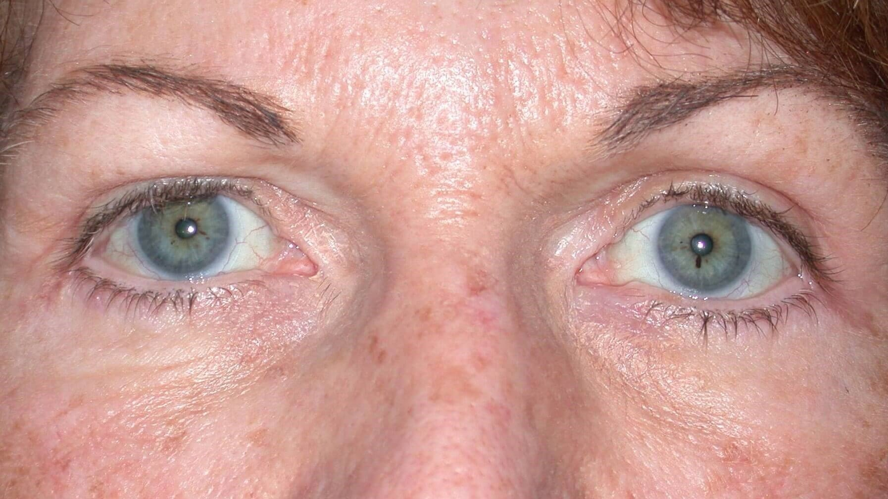 Blepharoplasty Front View After