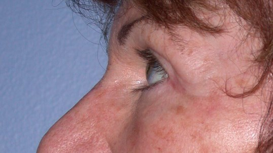 Blepharoplasty Side Left After