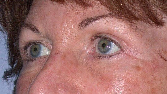 Blepharoplasty Side View After