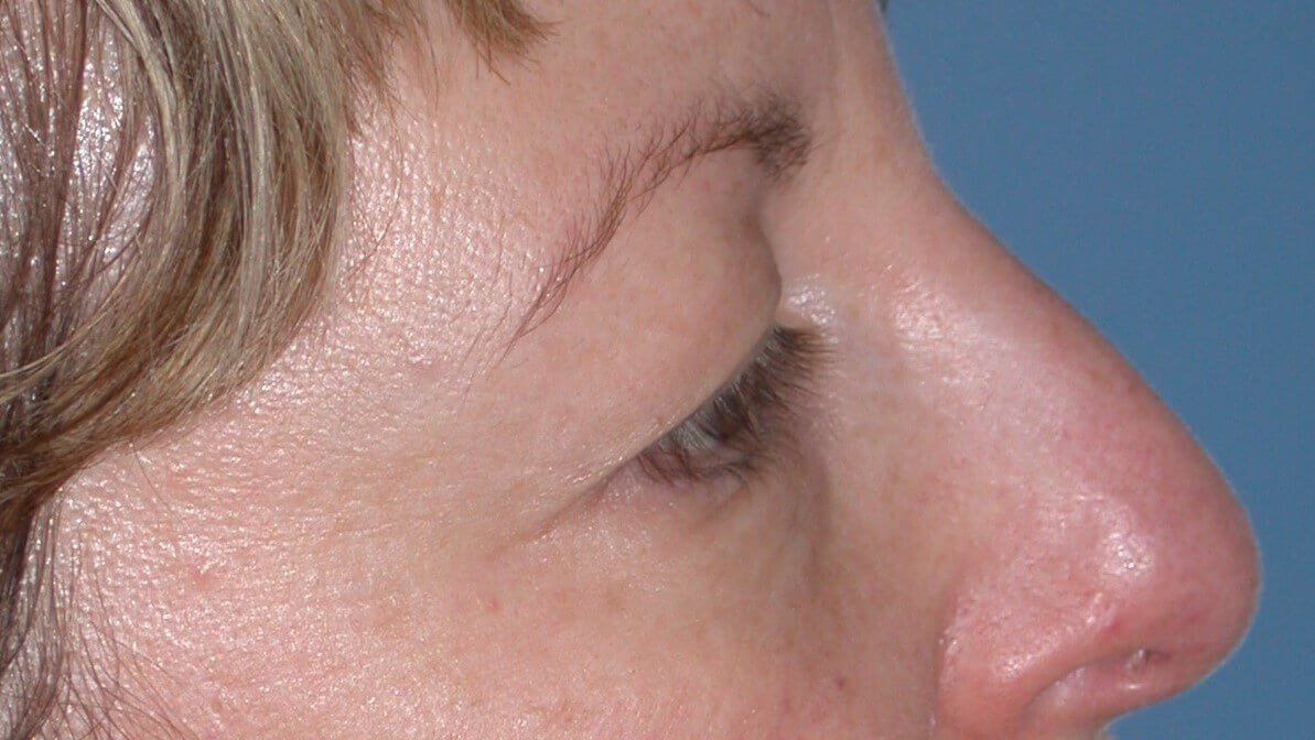 Blepharoplasty Side Right Before