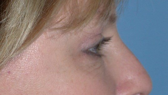 Blepharoplasty Side Right After