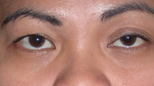 Blepharoplasty Front View Before
