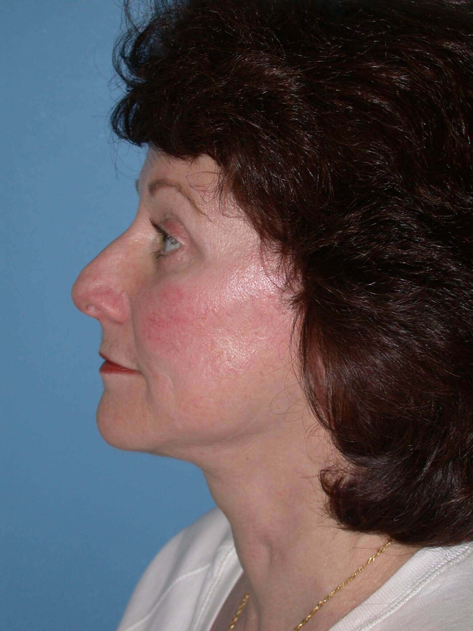 Facelift Side Left Before