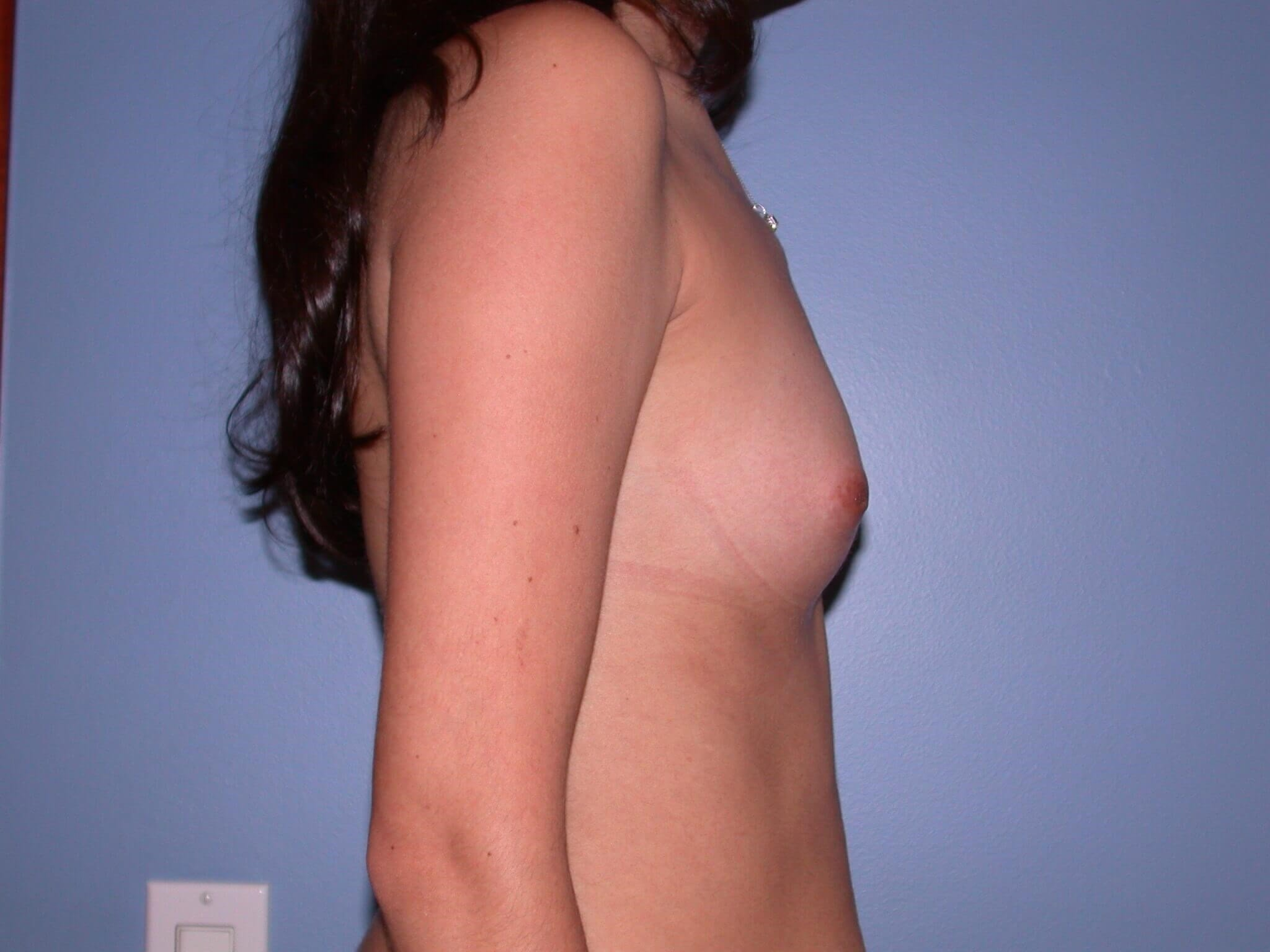 Breast Augmentation Side Right Before
