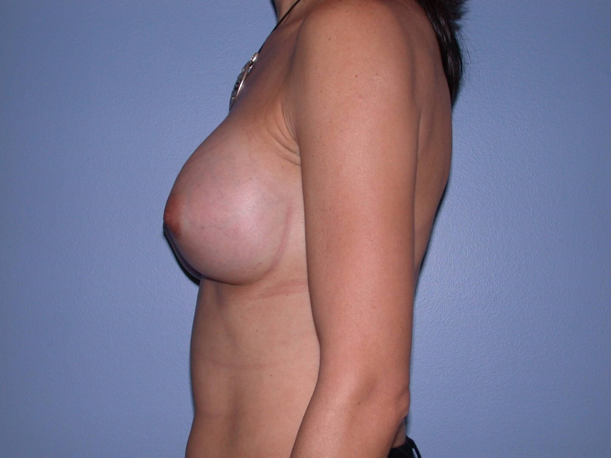 Breast Augmentation Left After