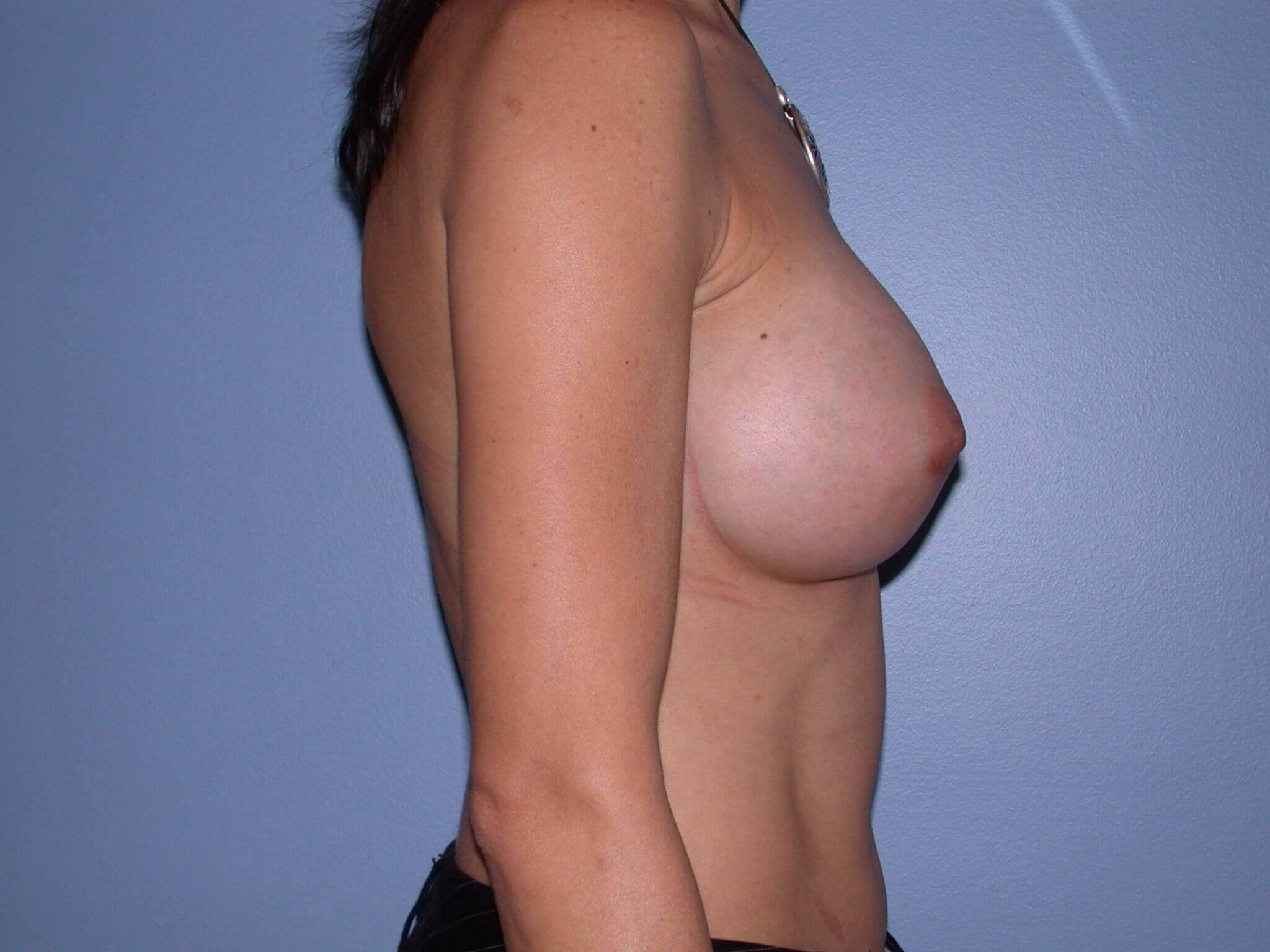 Breast Augmentation Right After