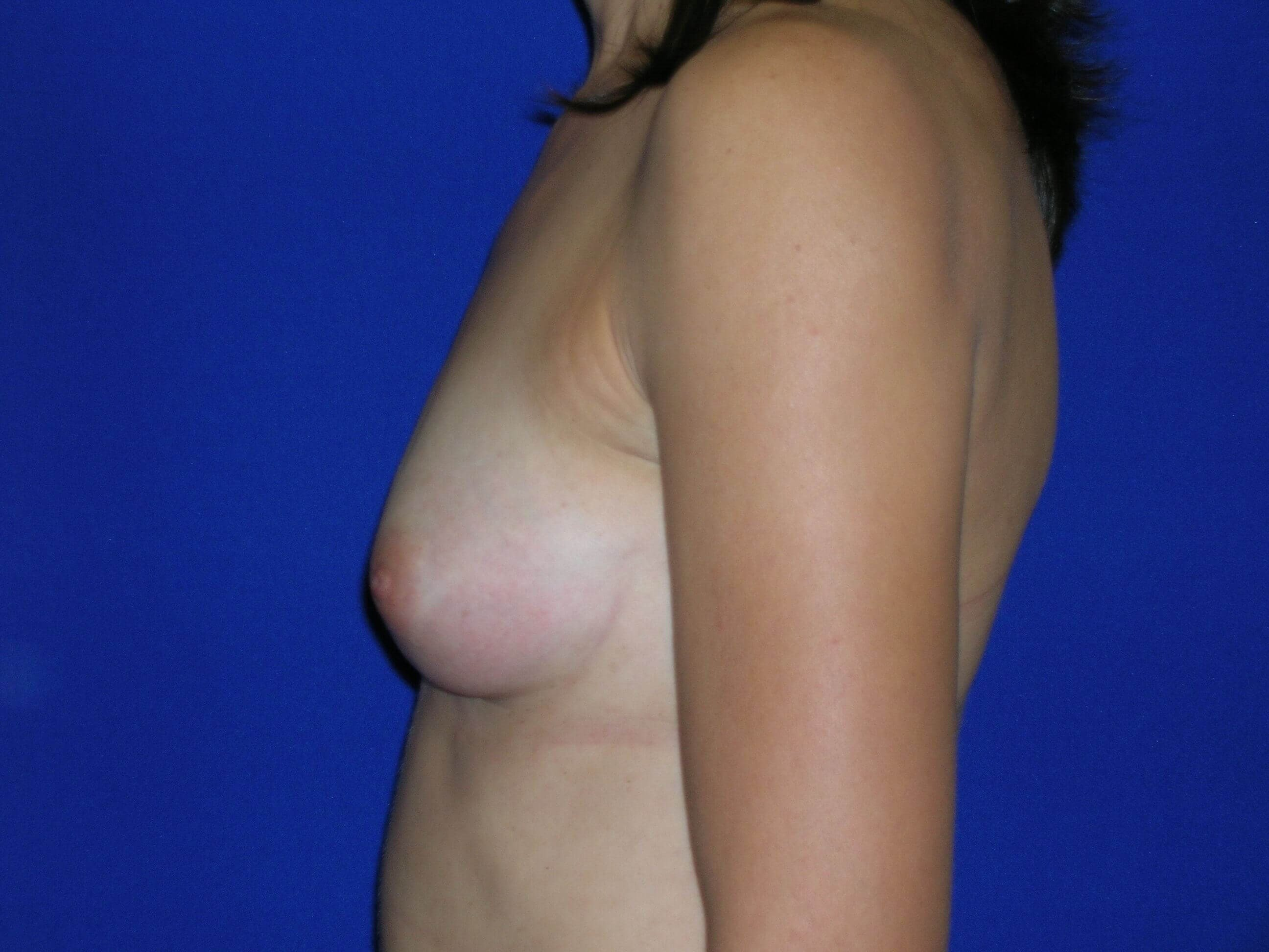 Breast Augmentation Left Before