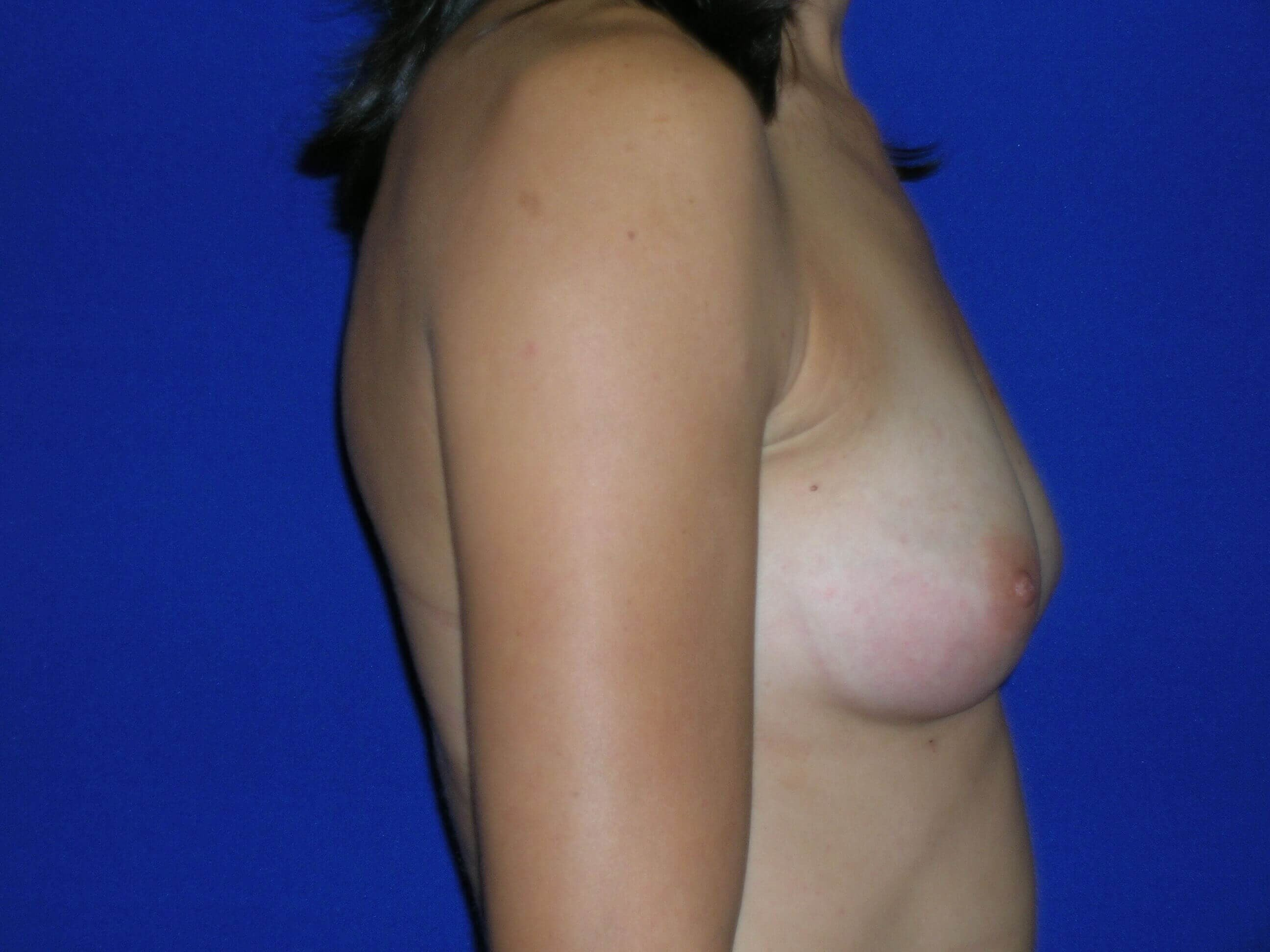 Breast Augmentation Right Before