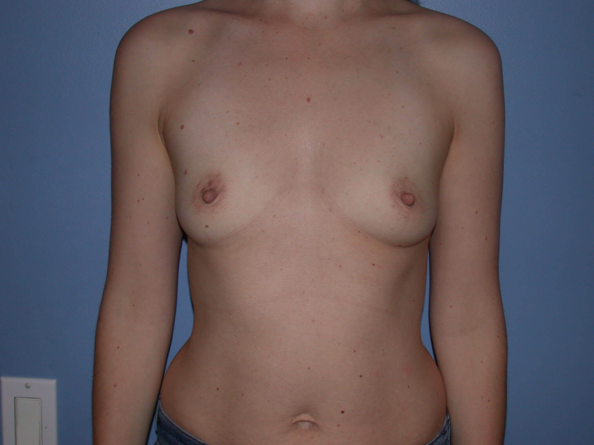 Breast Augmentation Front View Before